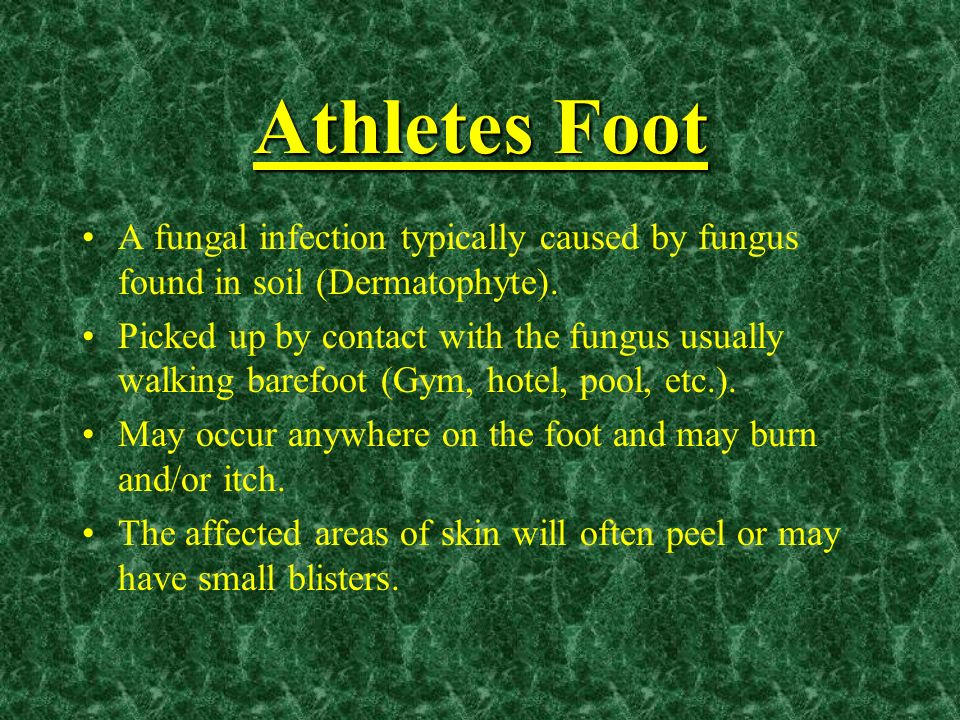 Athletes Foot A fungal infection typically caused by fungus found in soil (Dermatophyte).