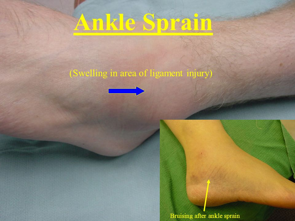 Ankle Sprain (Swelling in area of ligament injury)