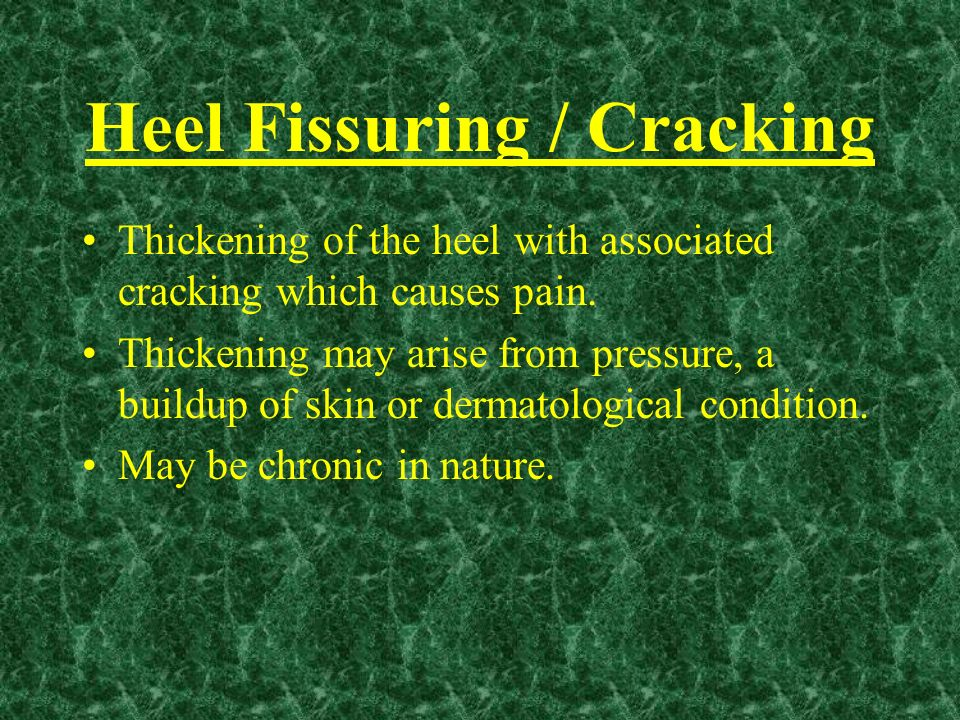 Heel Fissuring / Cracking
