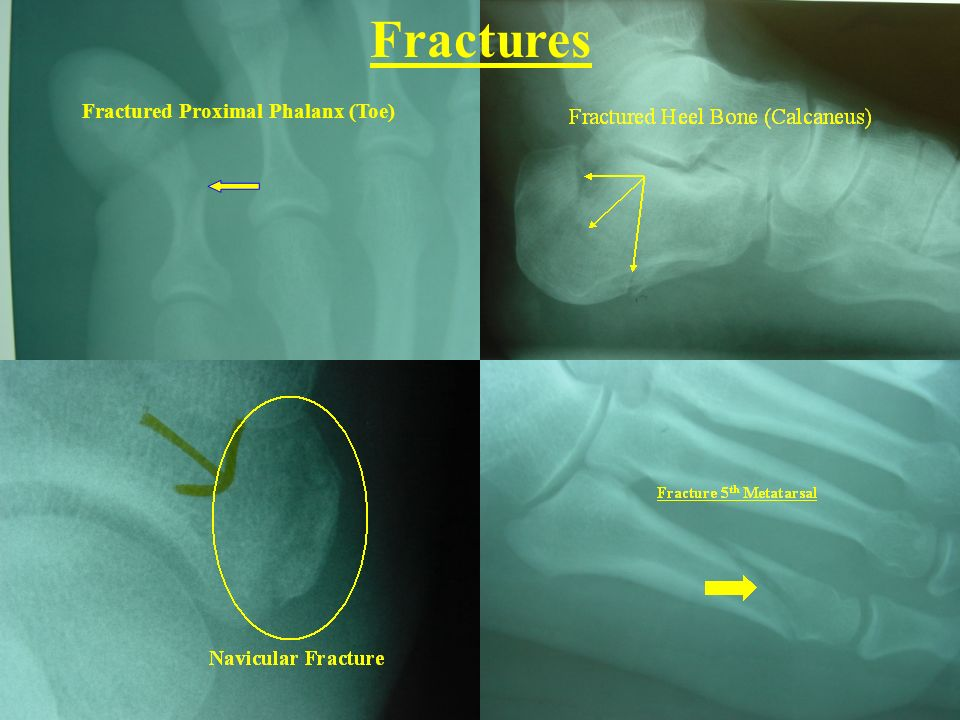 Fractures Fractured Proximal Phalanx (Toe)