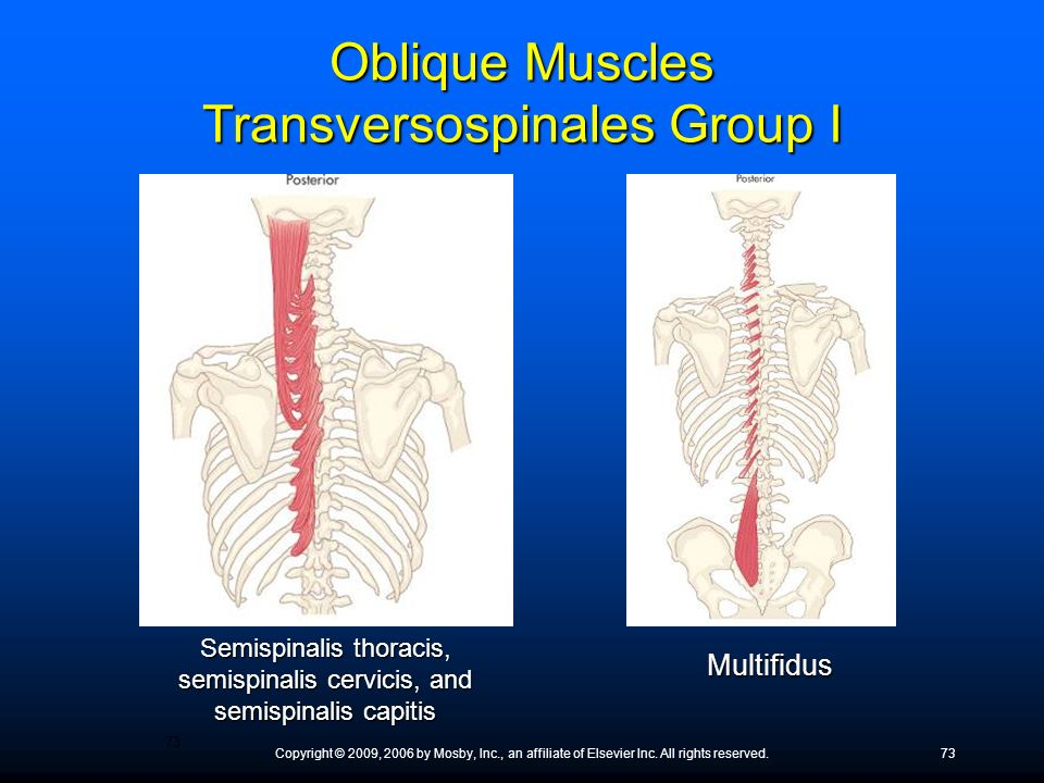 Oblique Muscles Transversospinales Group I