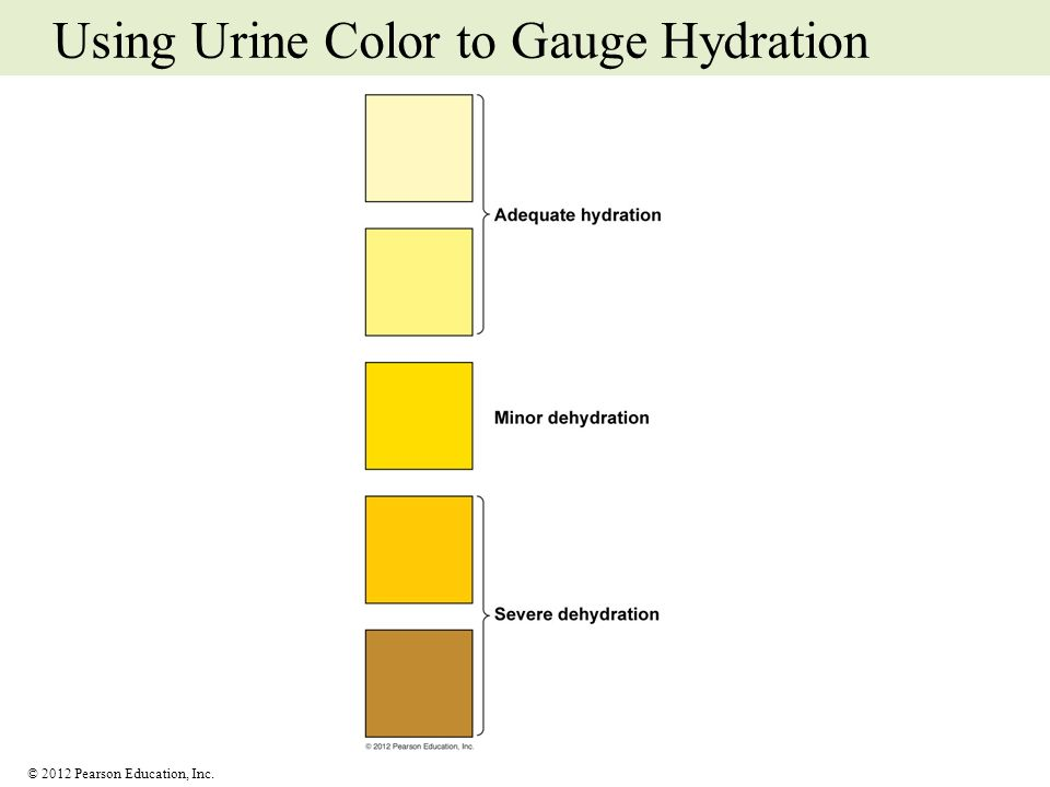 Using Urine Color to Gauge Hydration