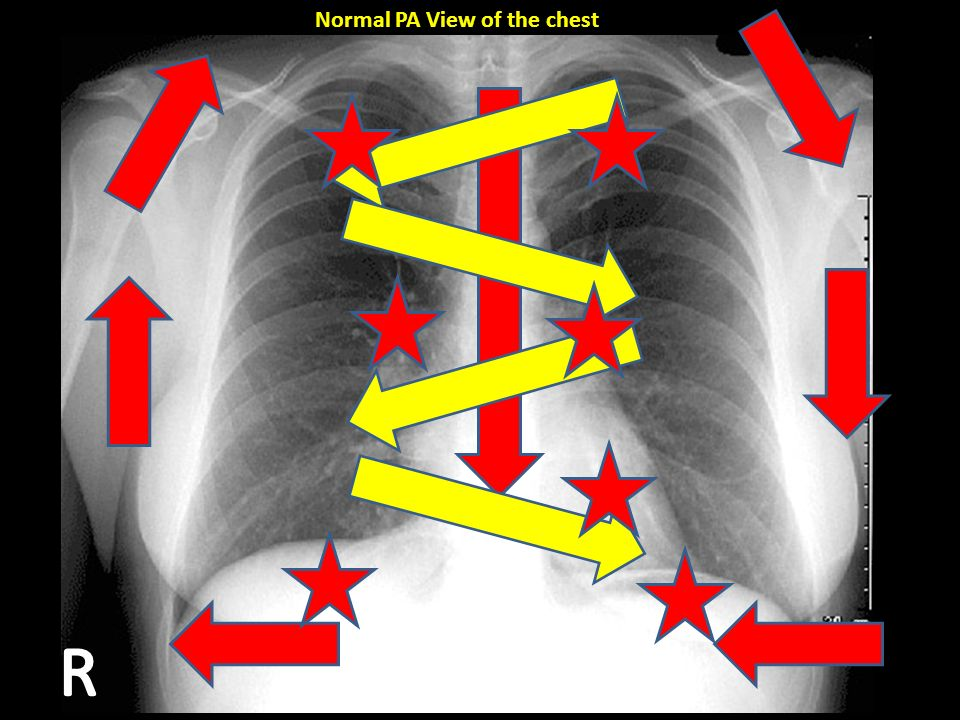 Normal PA View of the chest