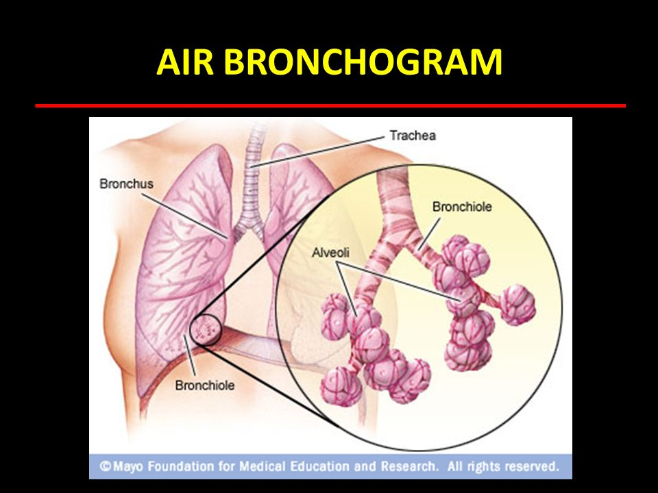 AIR BRONCHOGRAM