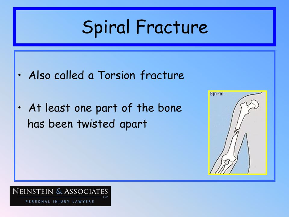 Spiral Fracture Also called a Torsion fracture