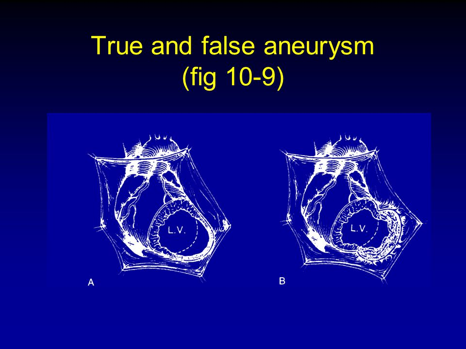 True and false aneurysm (fig 10-9)