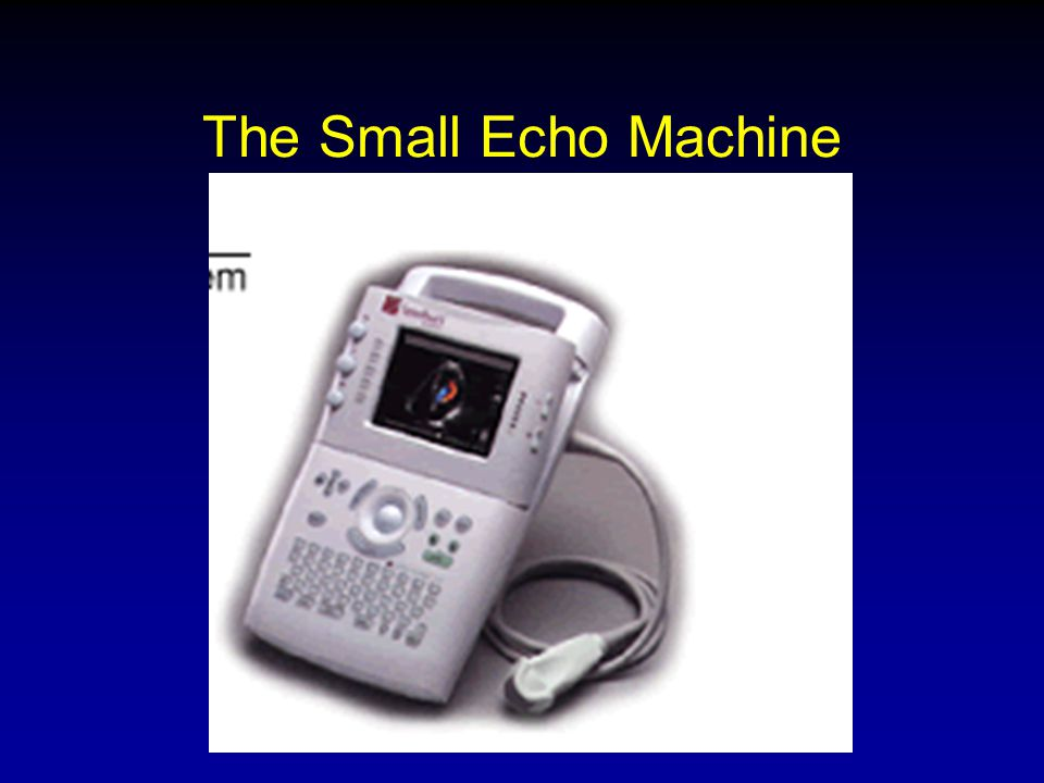 The Small Echo Machine
