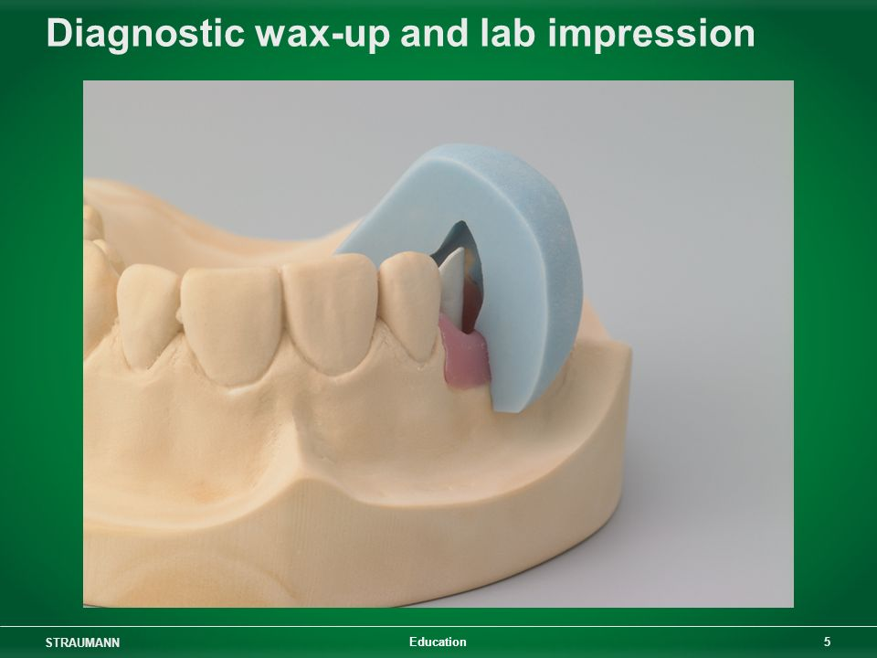 Diagnostic wax-up and lab impression