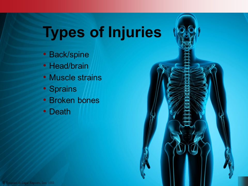 Types of Injuries Back/spine Head/brain Muscle strains Sprains