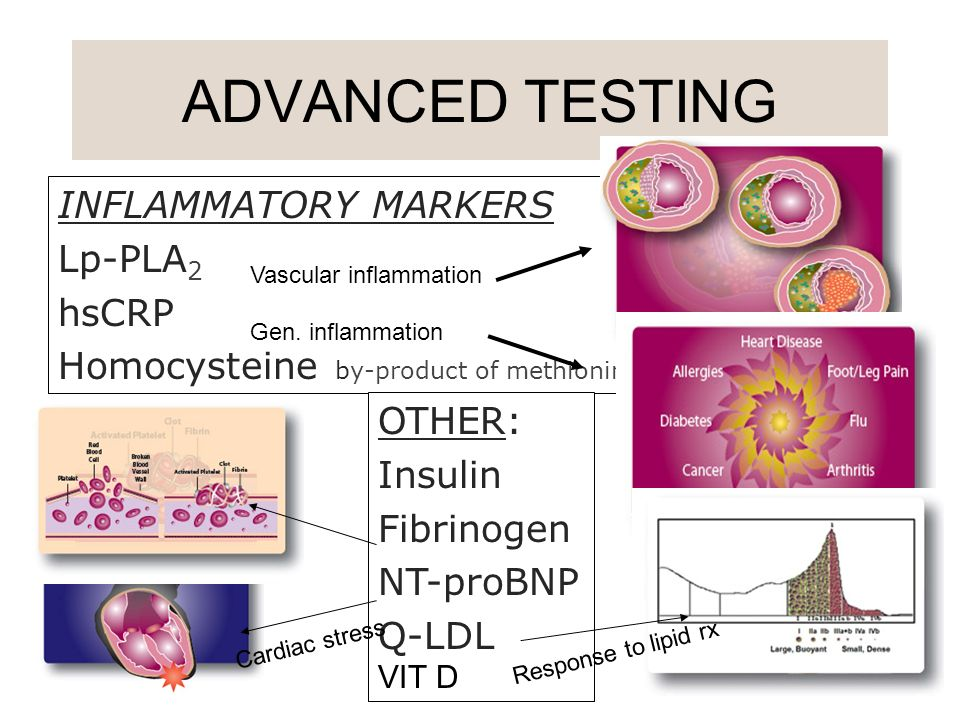 ADVANCED TESTING INFLAMMATORY MARKERS Lp-PLA2 hsCRP