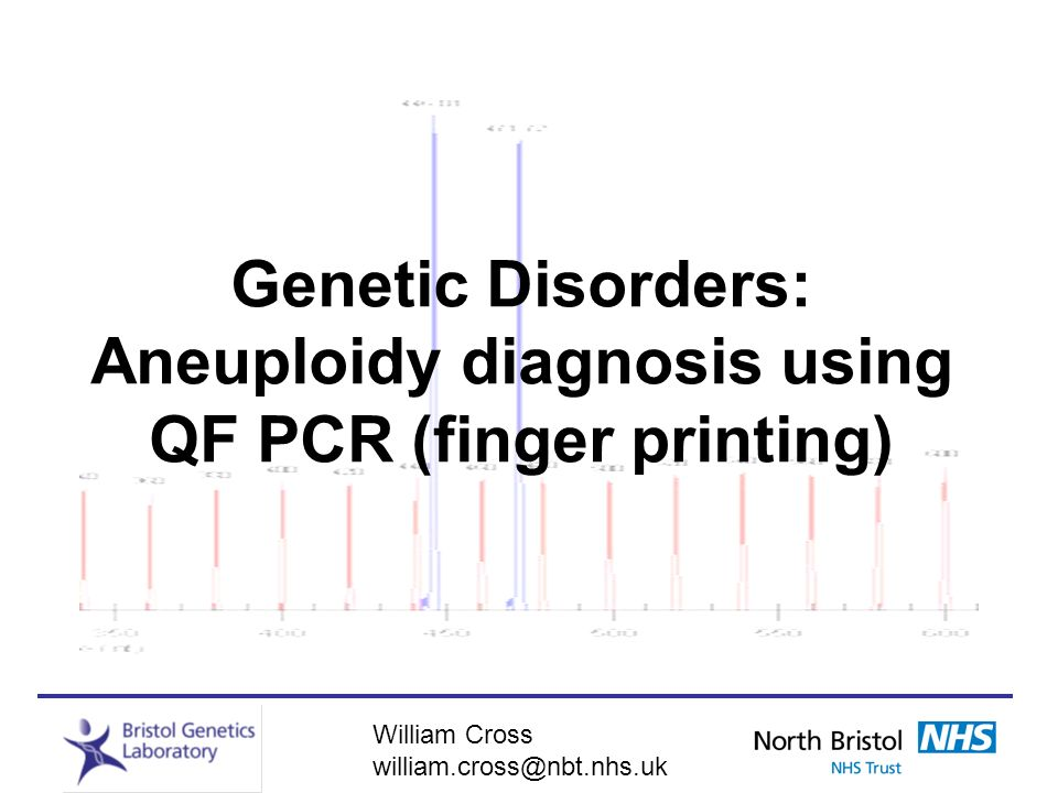 Genetic Disorders: Aneuploidy diagnosis using QF PCR (finger printing)