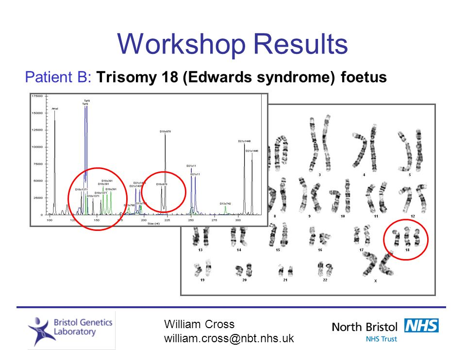 Workshop Results Patient B: Trisomy 18 (Edwards syndrome) foetus
