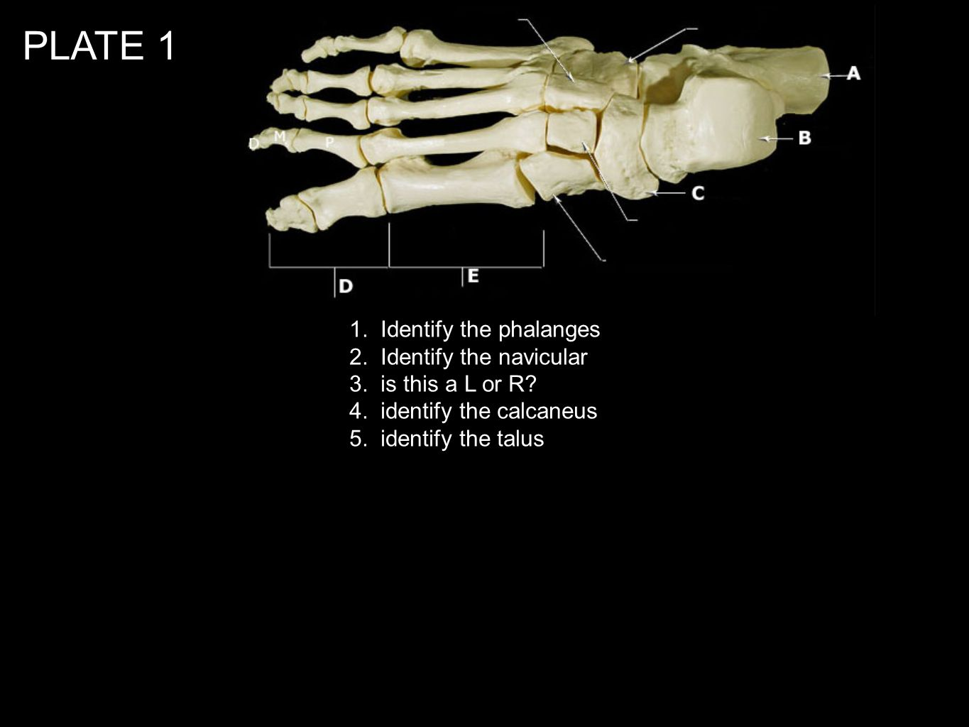 PLATE 1 1. Identify the phalanges 2. Identify the navicular