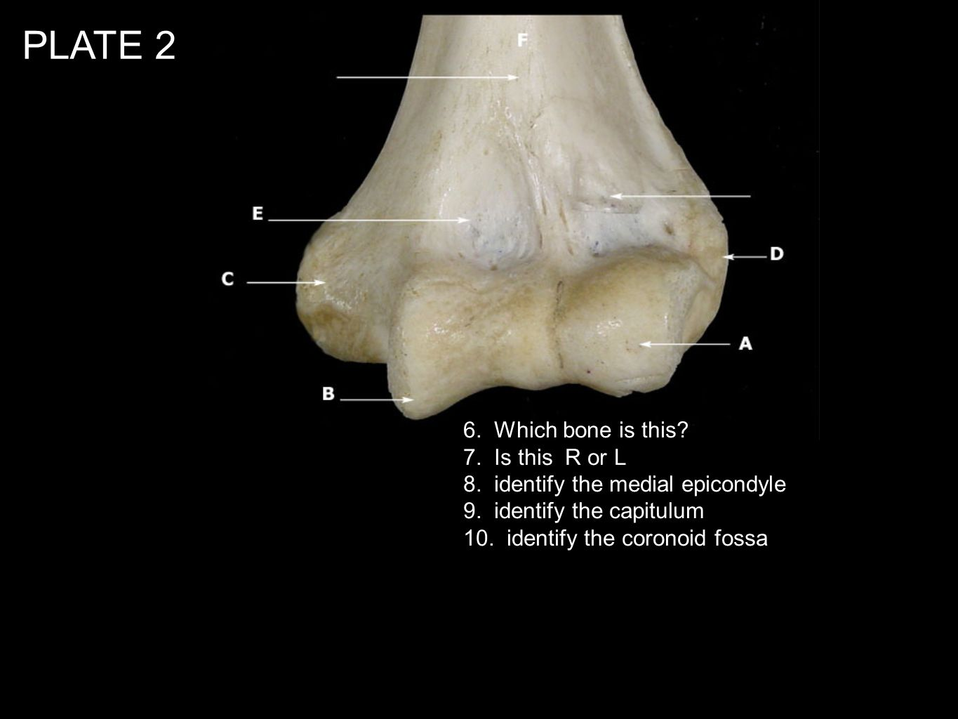 PLATE 2 6. Which bone is this 7. Is this R or L