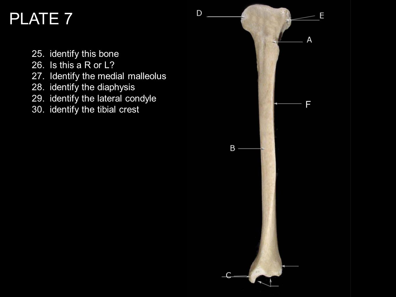 PLATE 7 25. identify this bone 26. Is this a R or L