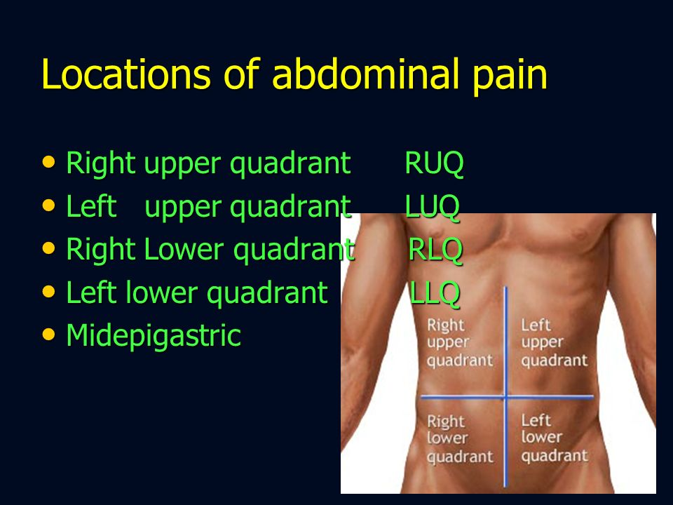 Locations of abdominal pain