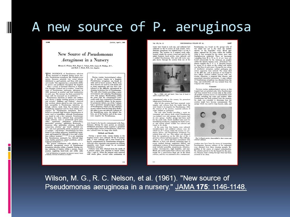 A new source of P. aeruginosa