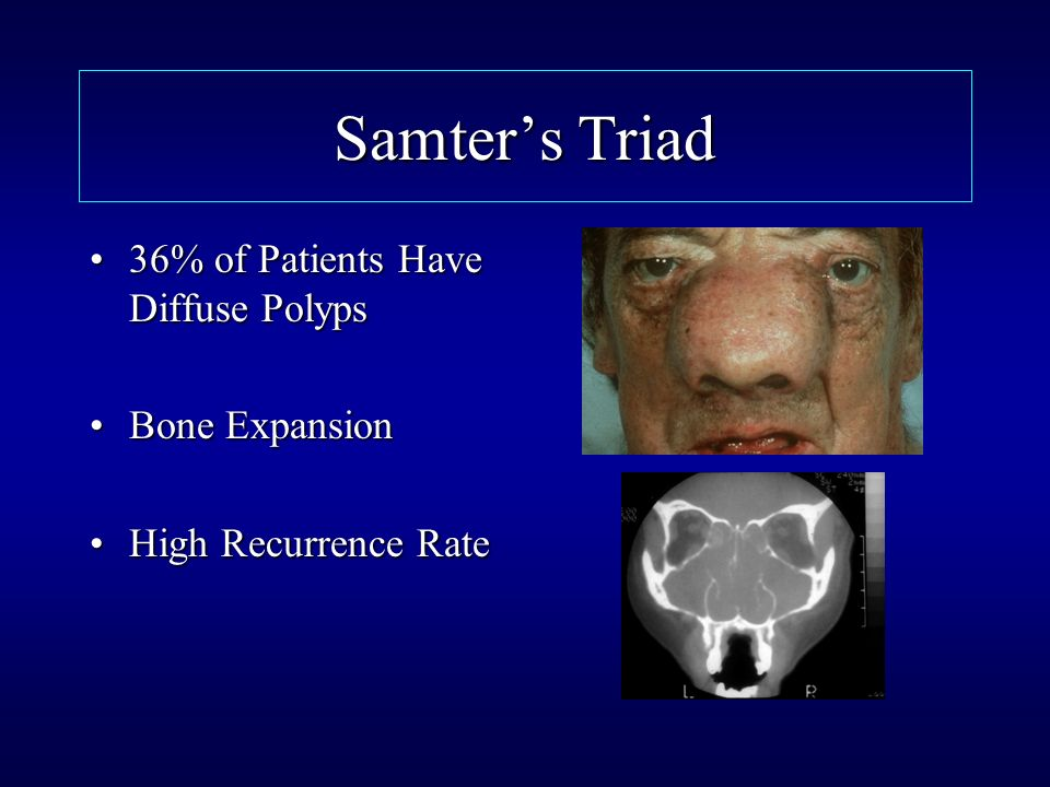 Samter's Triad 36% of Patients Have Diffuse Polyps Bone Expansion