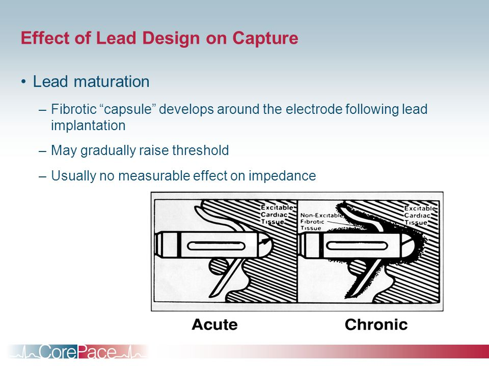Effect of Lead Design on Capture