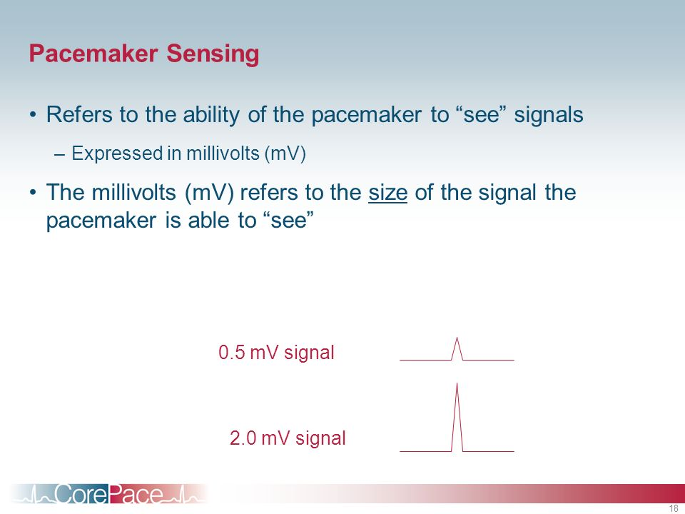 Pacemaker Sensing Refers to the ability of the pacemaker to see signals. Expressed in millivolts (mV)