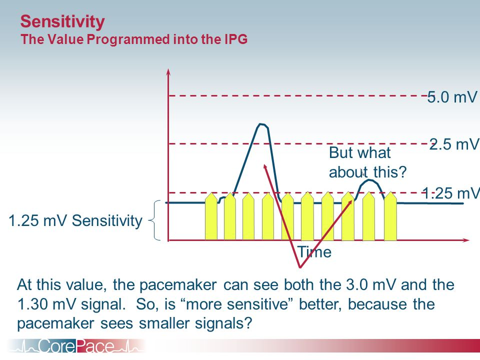 Sensitivity The Value Programmed into the IPG