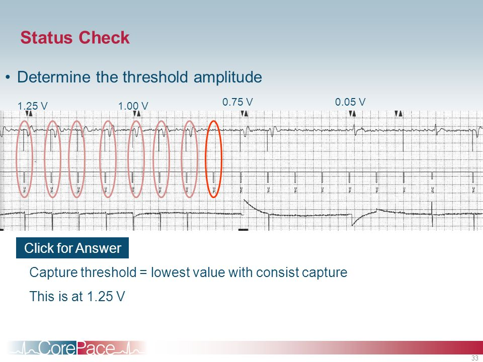 Status Check Determine the threshold amplitude Click for Answer