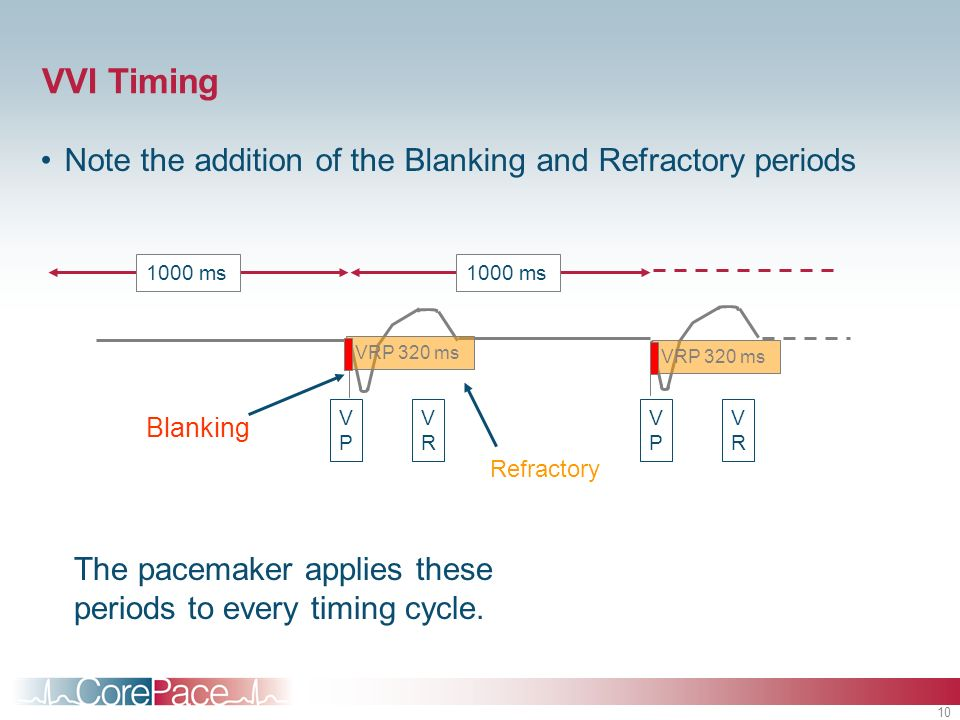 VVI Timing Note the addition of the Blanking and Refractory periods