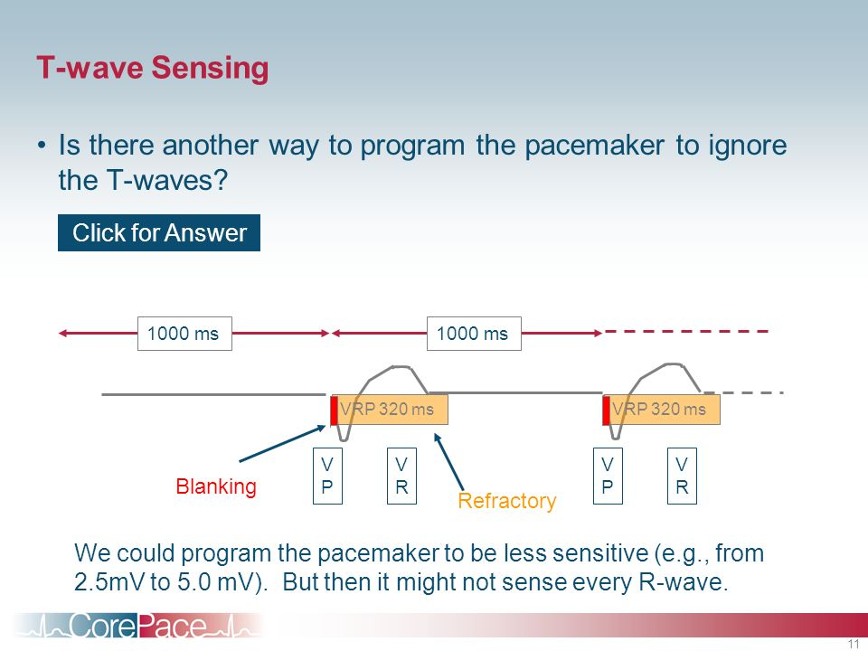 T-wave Sensing Is there another way to program the pacemaker to ignore the T-waves Click for Answer.