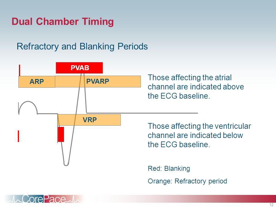 Dual Chamber Timing Refractory and Blanking Periods