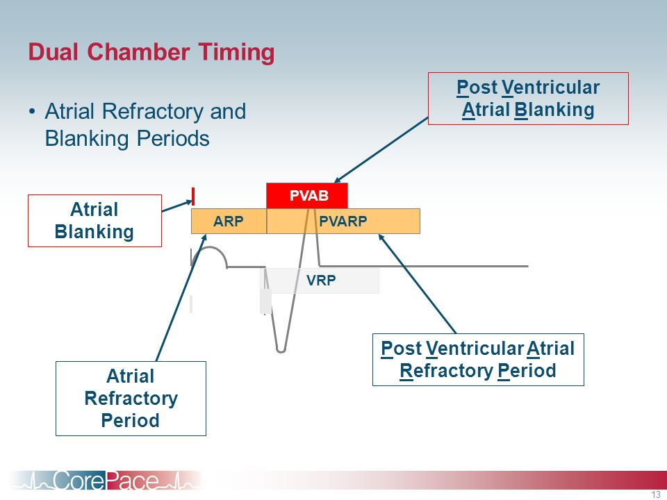Dual Chamber Timing Atrial Refractory and Blanking Periods