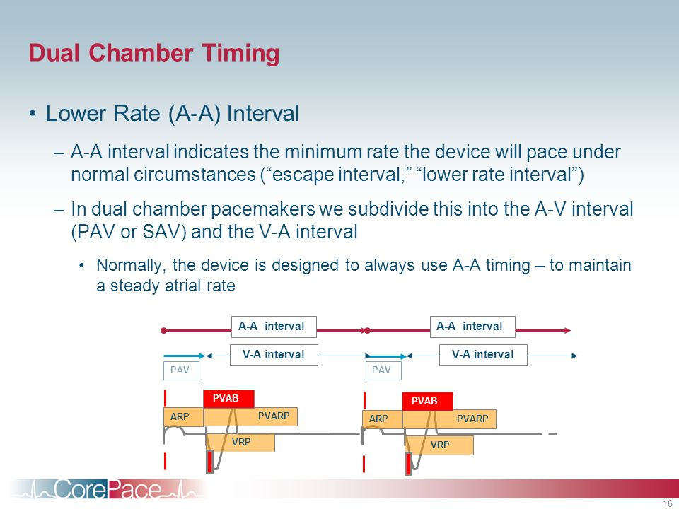 Dual Chamber Timing Lower Rate (A-A) Interval