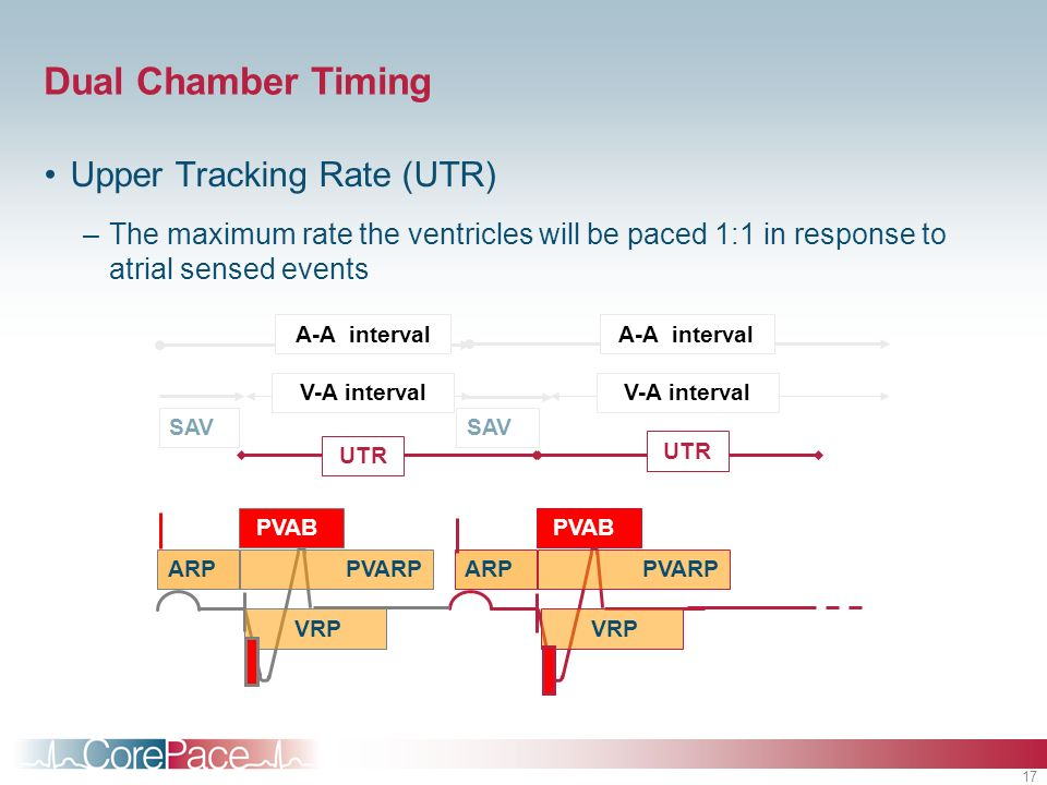 Dual Chamber Timing Upper Tracking Rate (UTR)