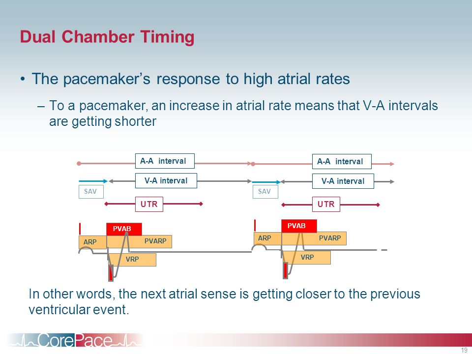 Dual Chamber Timing The pacemaker's response to high atrial rates