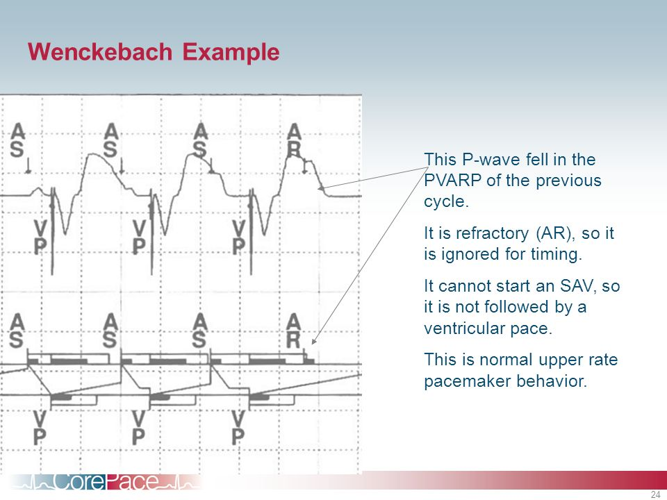 Wenckebach Example This P-wave fell in the PVARP of the previous cycle. It is refractory (AR), so it is ignored for timing.