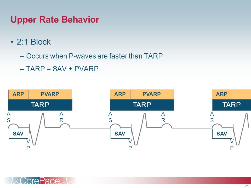 Upper Rate Behavior 2:1 Block Occurs when P-waves are faster than TARP