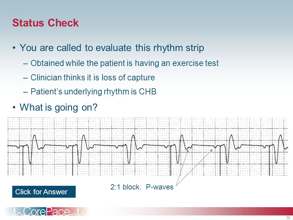Status Check You are called to evaluate this rhythm strip