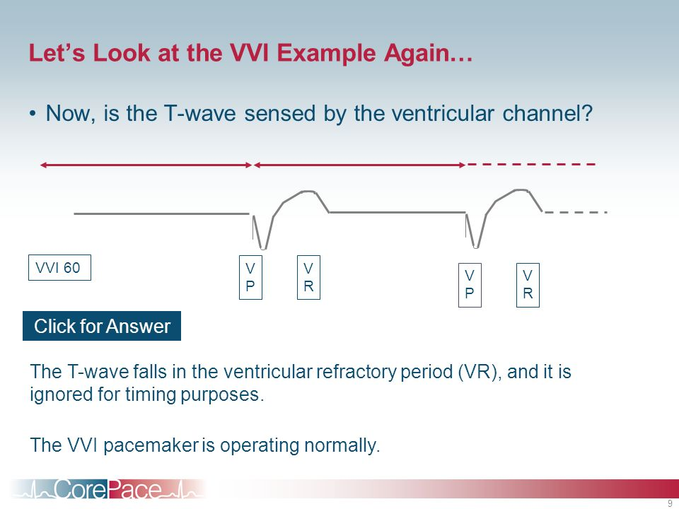 Let's Look at the VVI Example Again…