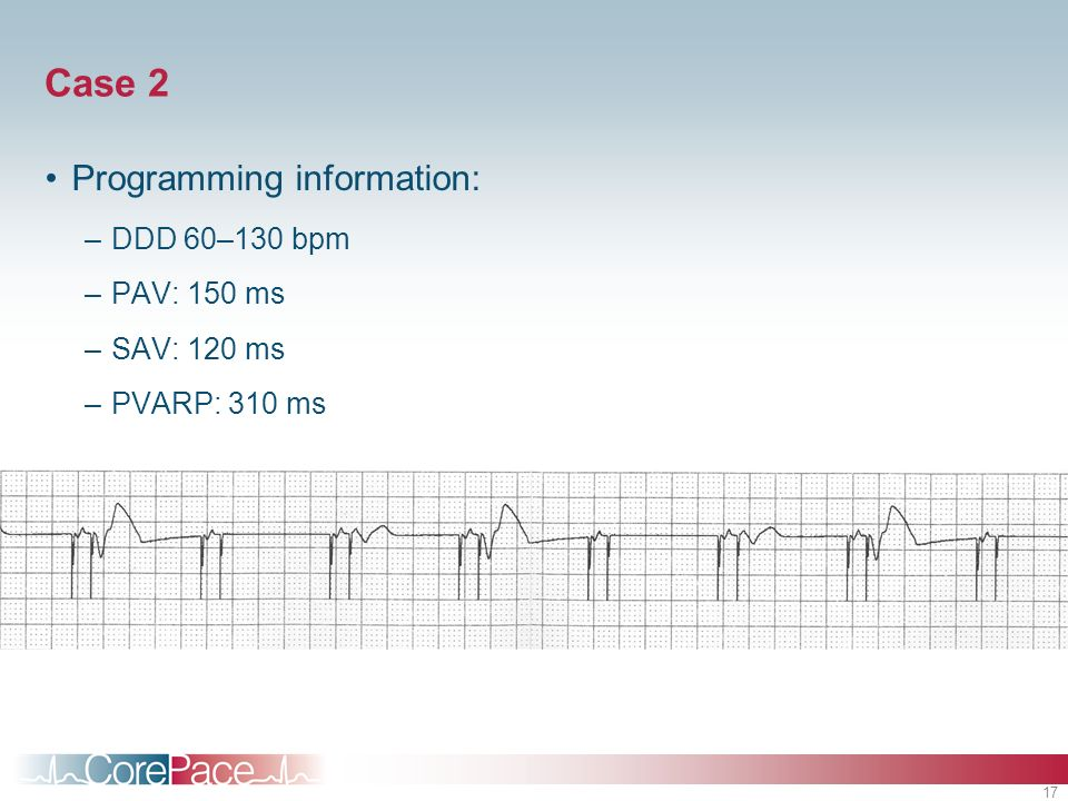 Case 2 Programming information: DDD 60–130 bpm PAV: 150 ms SAV: 120 ms