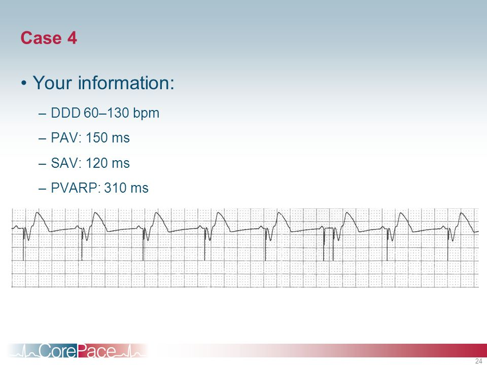 Your information: Case 4 DDD 60–130 bpm PAV: 150 ms SAV: 120 ms