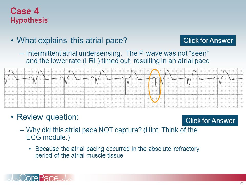 Case 4 Hypothesis What explains this atrial pace Review question: