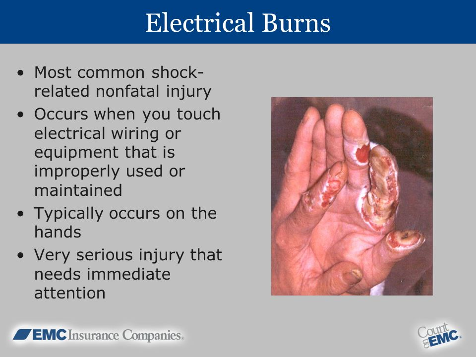 Electrical Burns Most common shock-related nonfatal injury