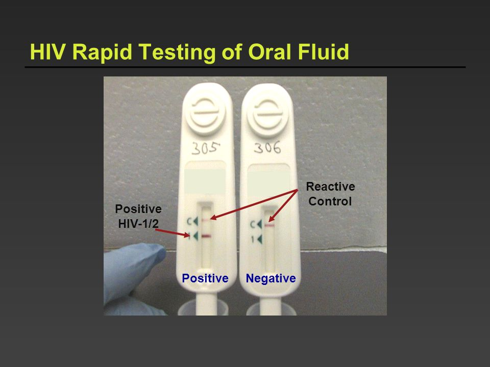 HIV Rapid Testing of Oral Fluid