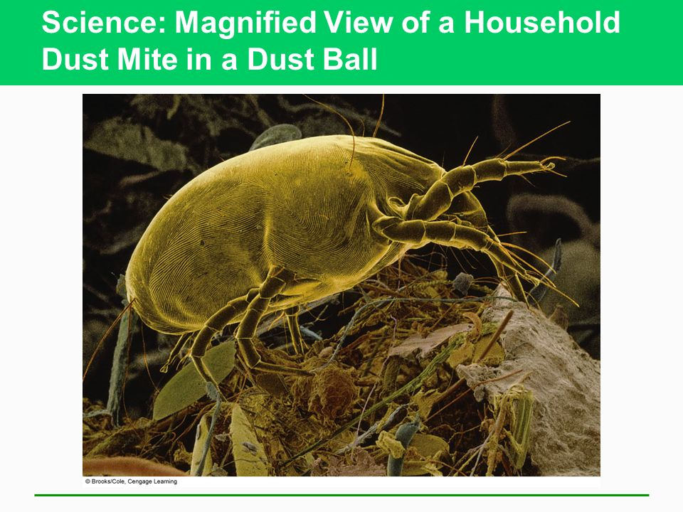 Science: Magnified View of a Household Dust Mite in a Dust Ball