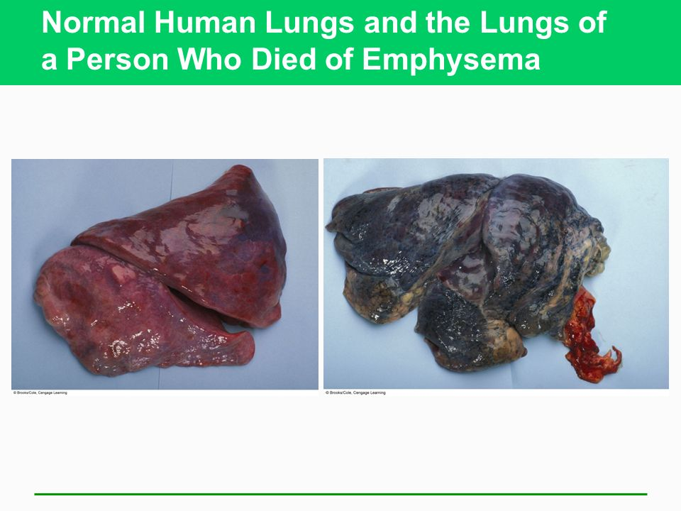 Normal Human Lungs and the Lungs of a Person Who Died of Emphysema