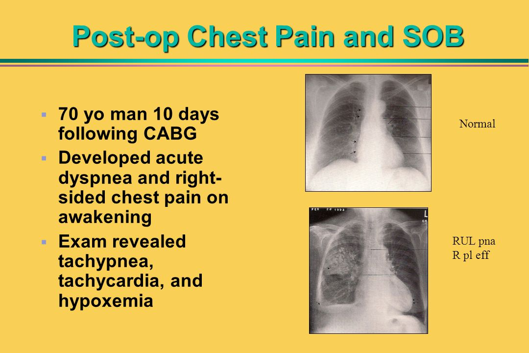 Post-op Chest Pain and SOB