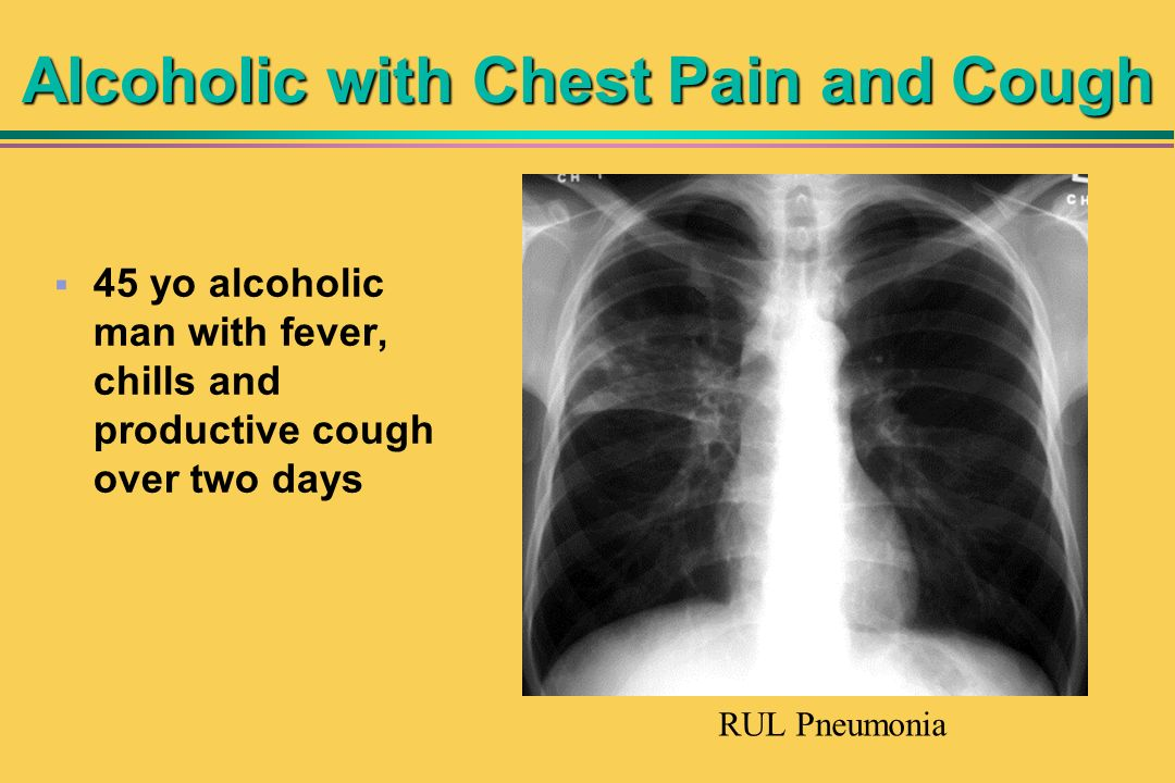 Alcoholic with Chest Pain and Cough