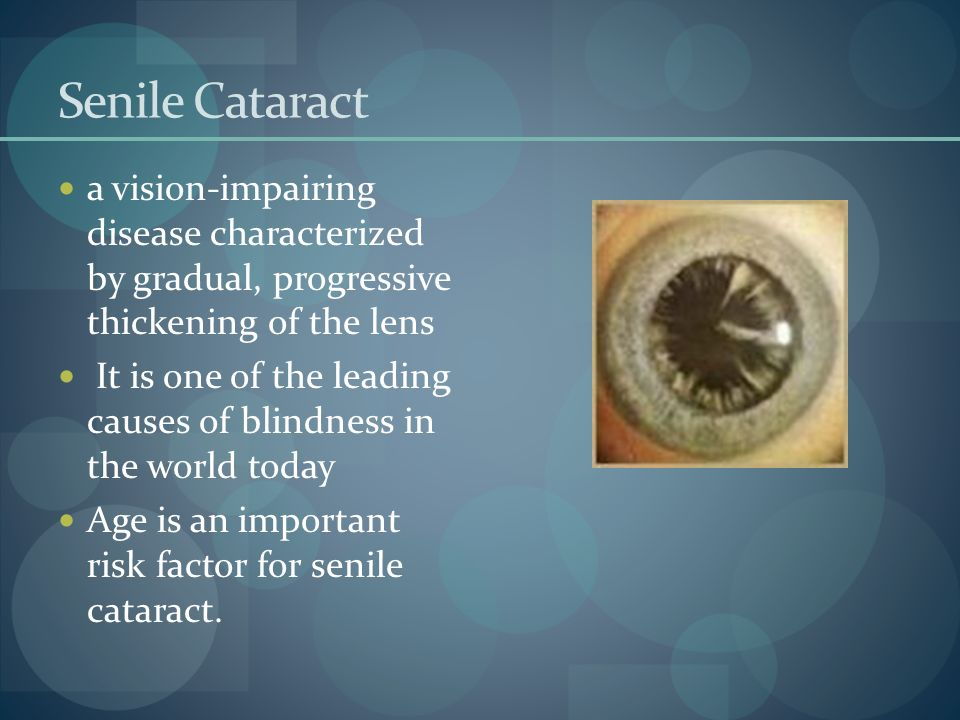 Senile Cataract a vision-impairing disease characterized by gradual, progressive thickening of the lens.