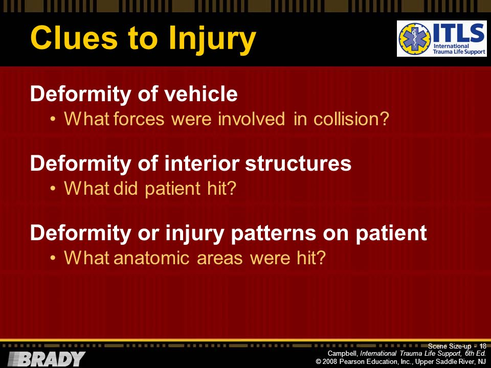 Clues to Injury Deformity of vehicle Deformity of interior structures