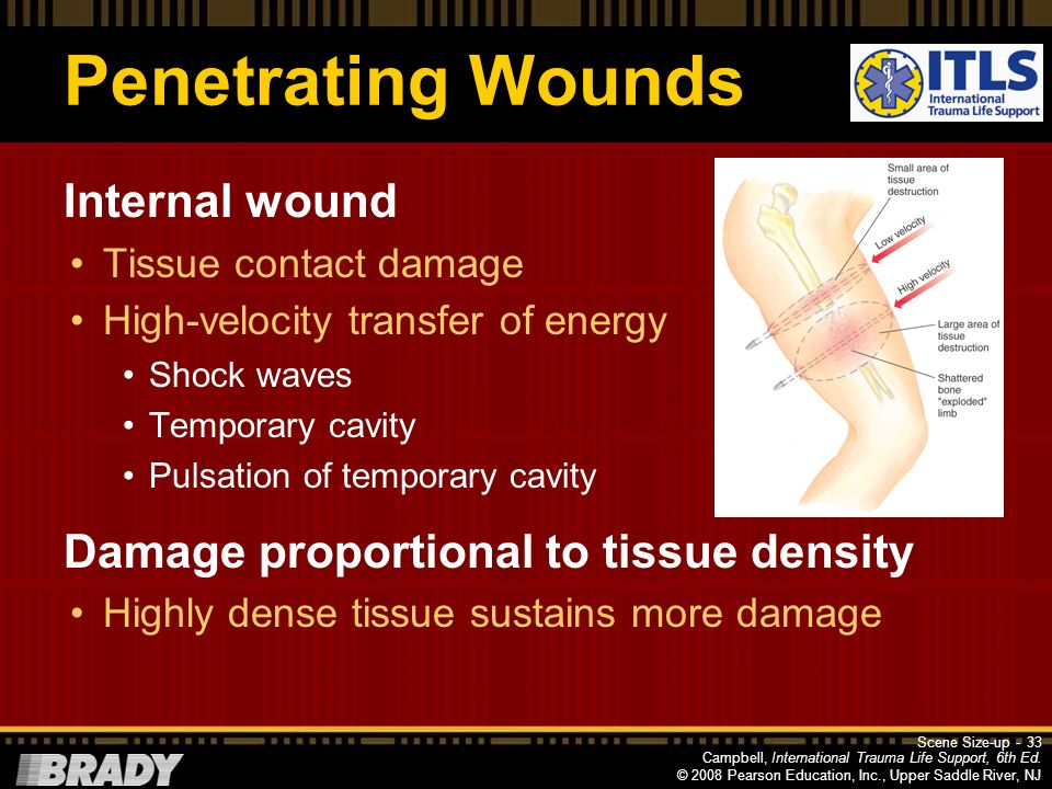 Penetrating Wounds Internal wound