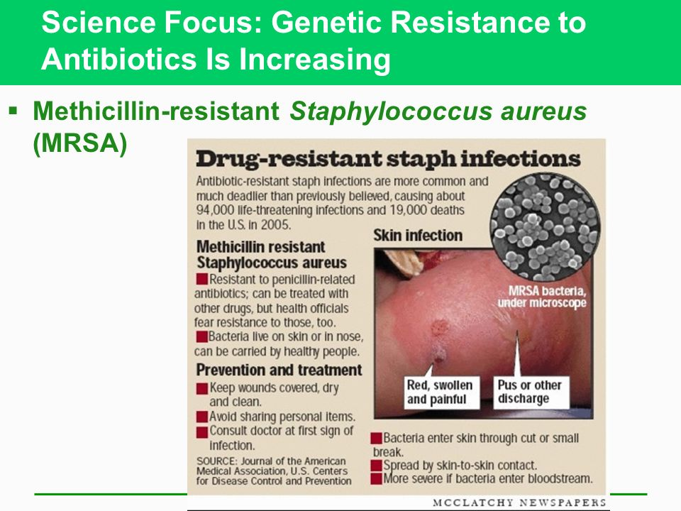 Science Focus: Genetic Resistance to Antibiotics Is Increasing